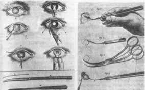 Operace očí, historie
